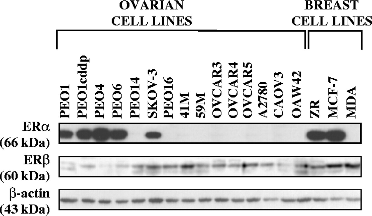 Estrogen Receptor A Mediates Gene Expression Changes And Growth Response In Ovarian Cancer Cells Exposed To Estrogen In Endocrine Related Cancer Volume 12 Issue 4 2005