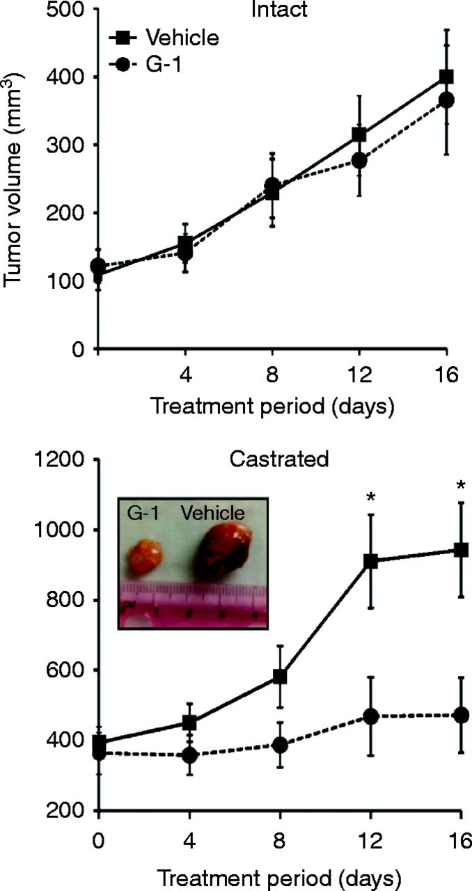 Targeting GPR30 with G-1: a new therapeutic target for castration