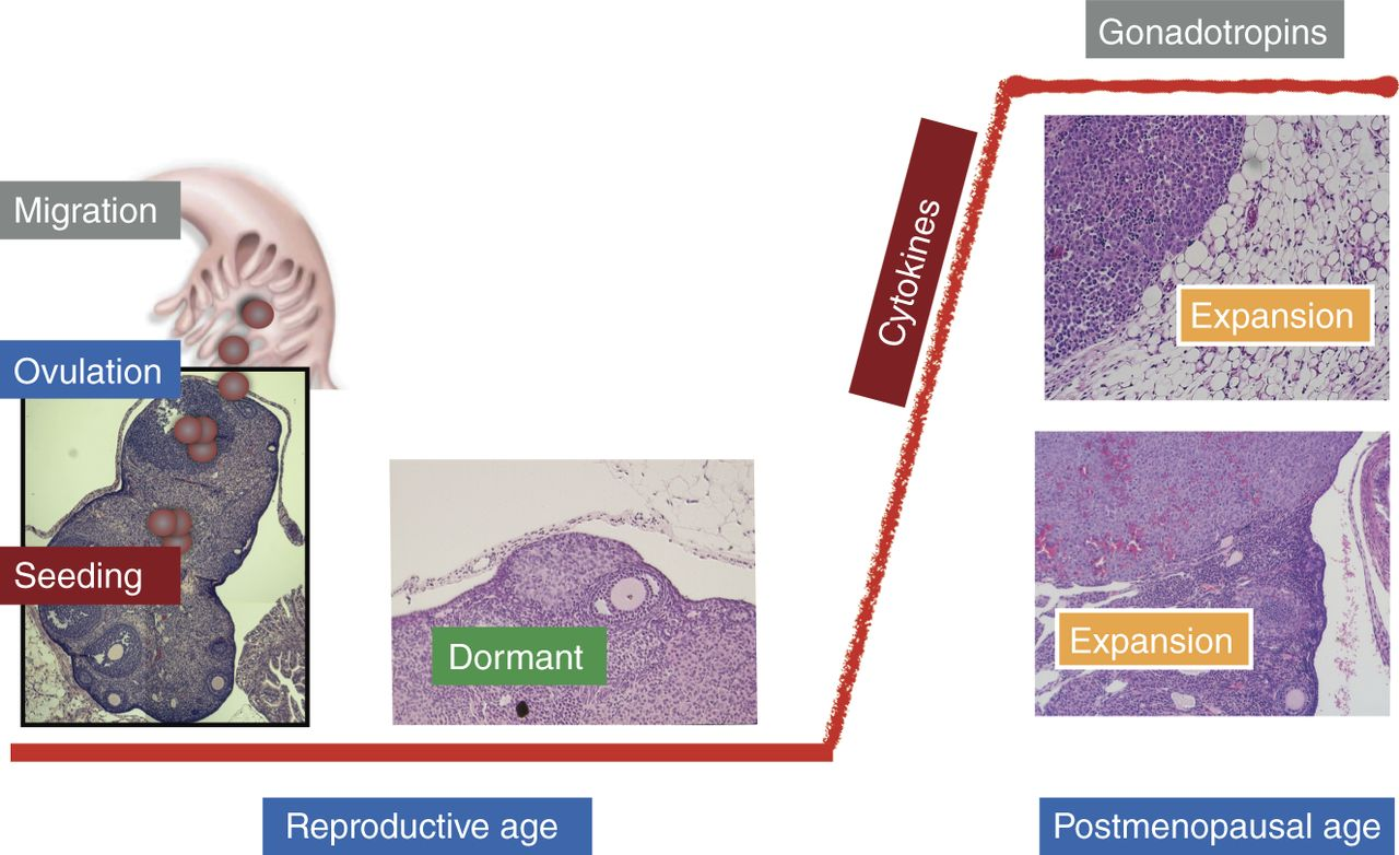 Redefining the origin and evolution of ovarian cancer: a