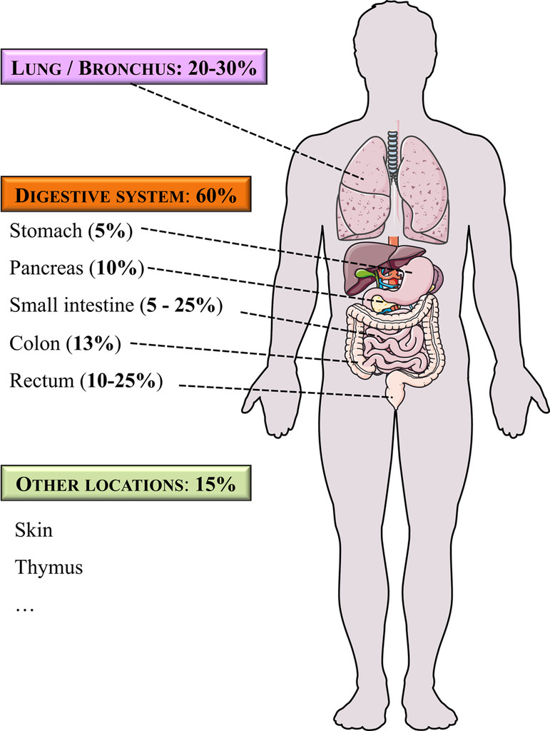 Most small bowel cancers are revealed by a complication