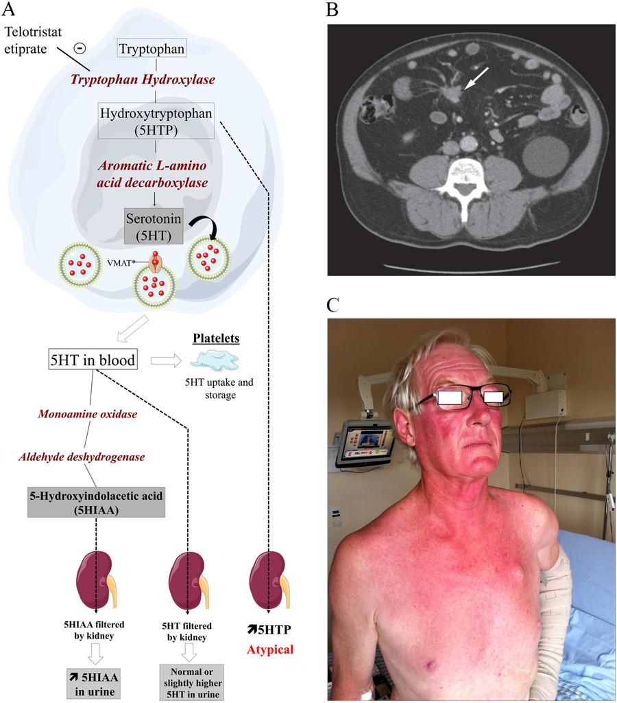Neuroendocrine cancer means. Neuroendocrine cancer xenograft. Specificații