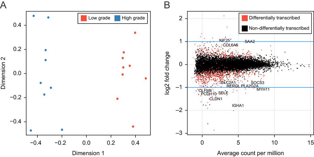 Periprostatic fat tissue transcriptome reveals a signature