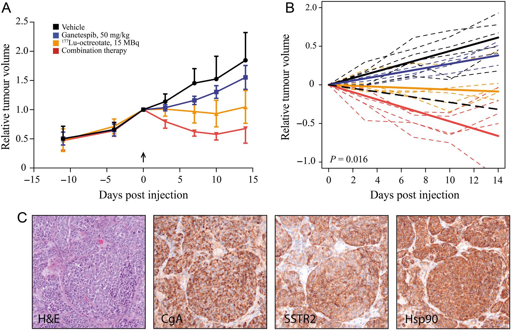 neuroendocrine cancer xenograft