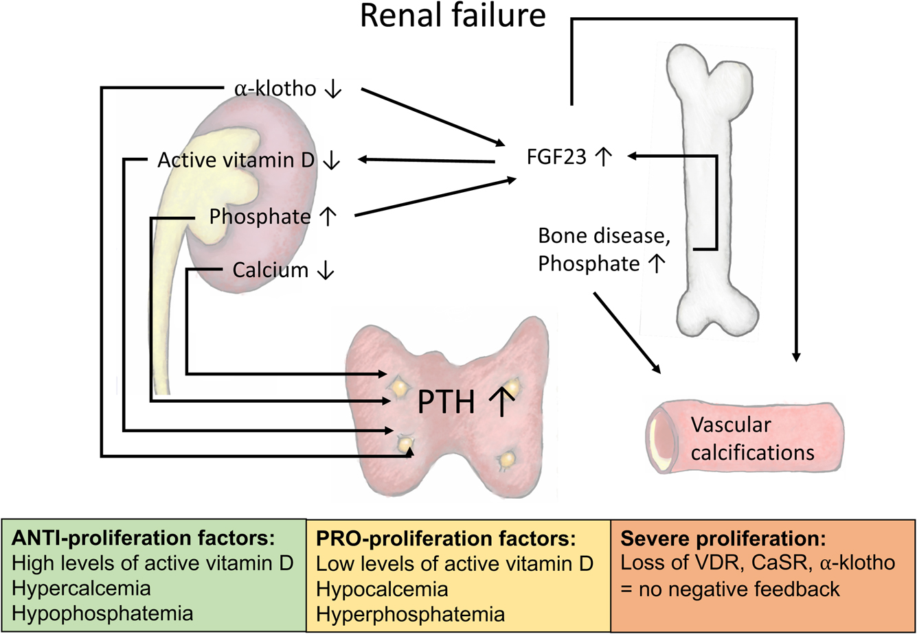 The Treatment Of Renal Hyperparathyroidism In Endocrine Related Cancer Volume 27 Issue 1 2020